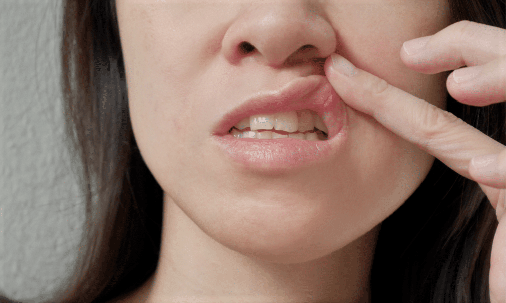 Home Remedy For Mouth Ulcer Or Canker Sore